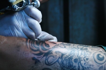 Different Types Of Tattoo Removal