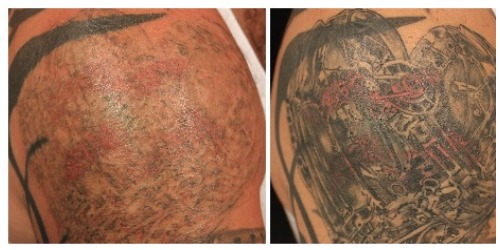 Tattoo Removal London Picosure Tattoo Removal