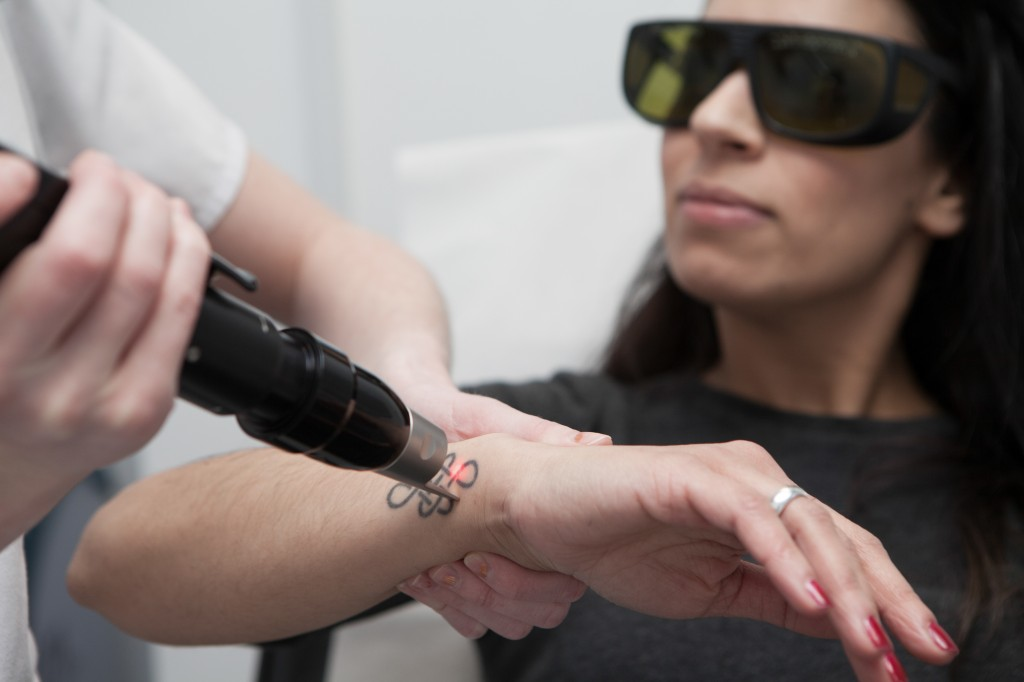 Get Prepared for Laser Tattoo Removal
